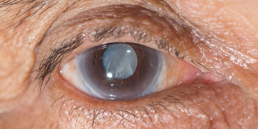 Глаукома: влияние повышенного внутриглазного давления на оптические диски и визуальные поля.