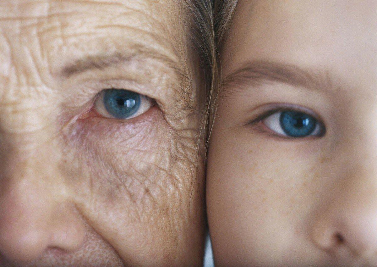 Преждевременное старение кожи: или слишком много сладкого.